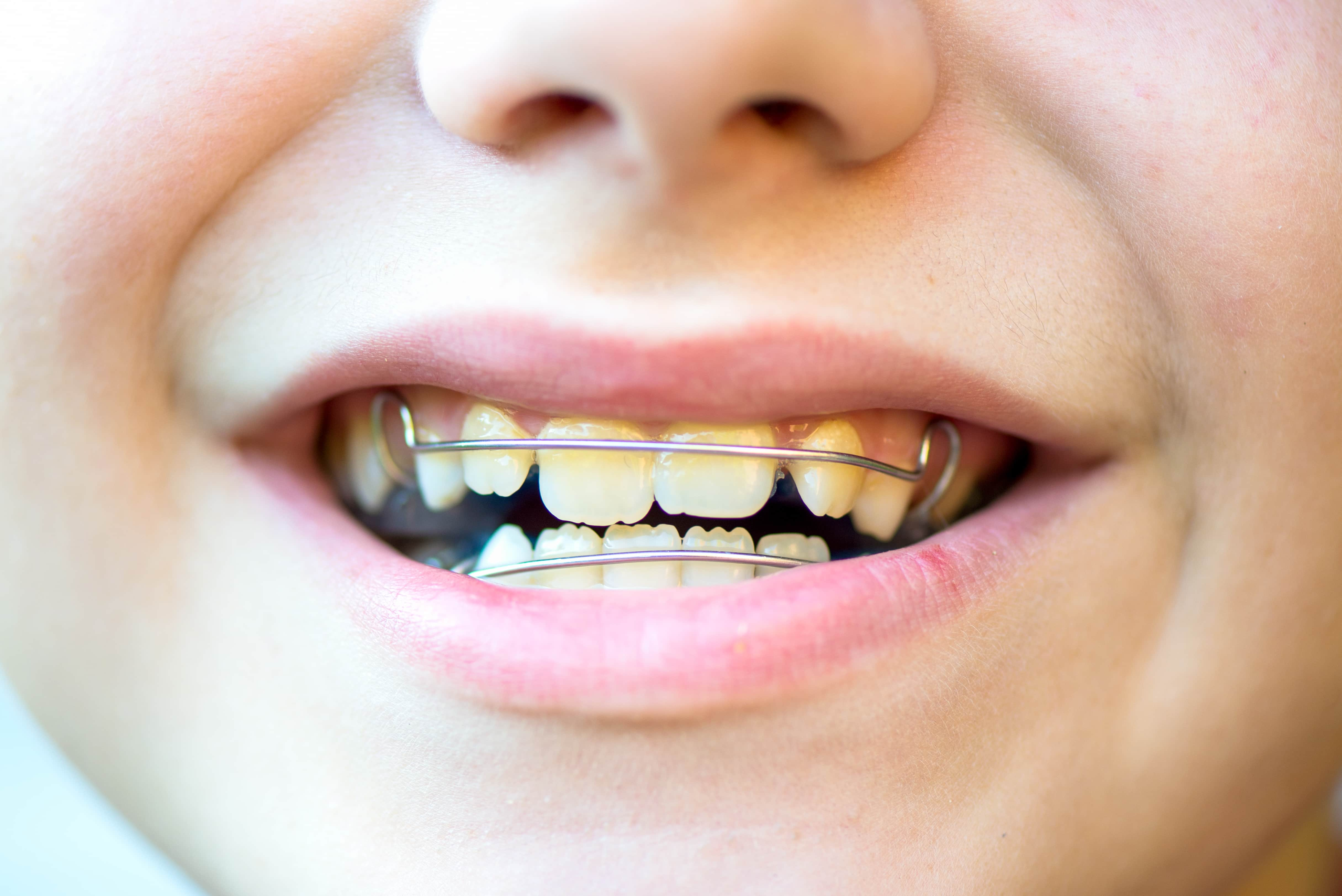 Dental Blue Removable Braces or Retainers for Teeth in the Boys Mouth, Orthodontic concept